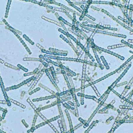 Cianobatteri filamentosi